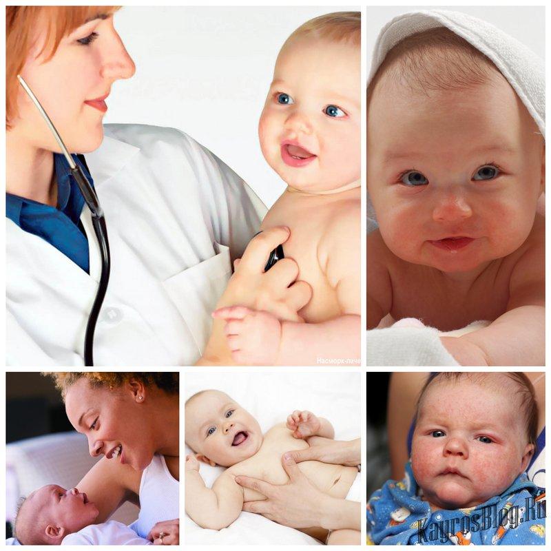 Как бороться с аллергией у грудного ребенка?