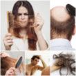Выпадение волос причины и лечение - просто о серьёзной проблеме