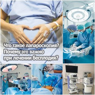 Что такое лапароскопия? Почему это важно при лечении бесплодия?