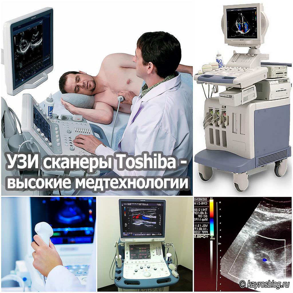 УЗИ сканеры Toshiba - высокие медтехнологии