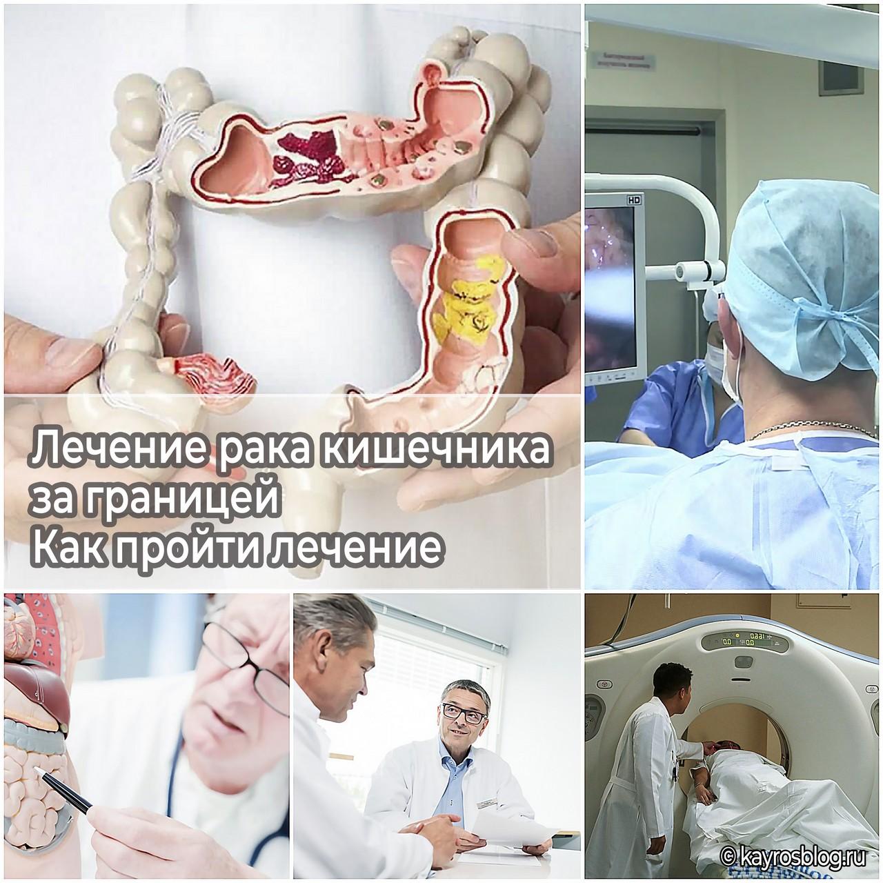 Лечение рака кишечника за границей - как пройти лечение